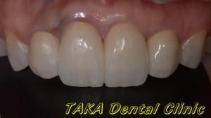 675上顎前歯部1