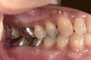 sinus tract2消失