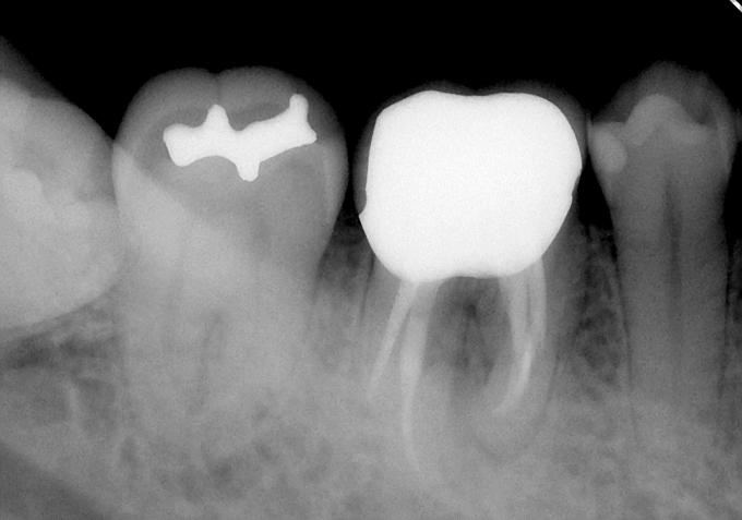 歯の根の病気でも諦めなければ抜歯をしなくても良いかも・・・サムネイル